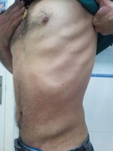 psoriasis costado 3 semanas después de tratamiento con artemisia annua