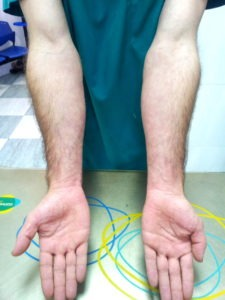 psoriasis brazos 3 semanas después de tratamiento con artemisia annua