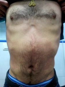 psoriasis tronco 3 semanas después de tratamiento conn artemisia annua